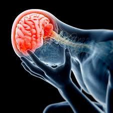 brain injury lawyer los angeles